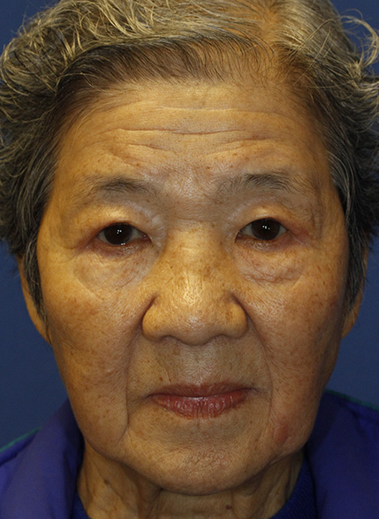 After Asian Blepharoplasty Frontal