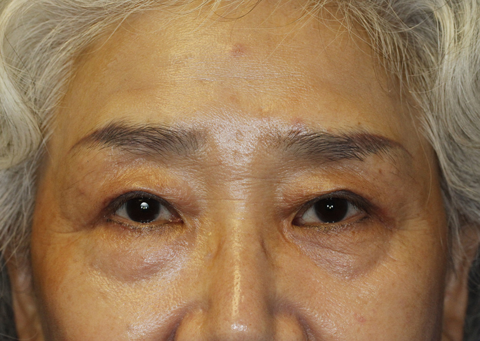 Asian Blepharoplasty After Frontal