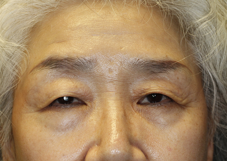 Asian Blepharoplasty Frontal Before