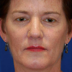 Before Blepharoplasty Photo Frontal