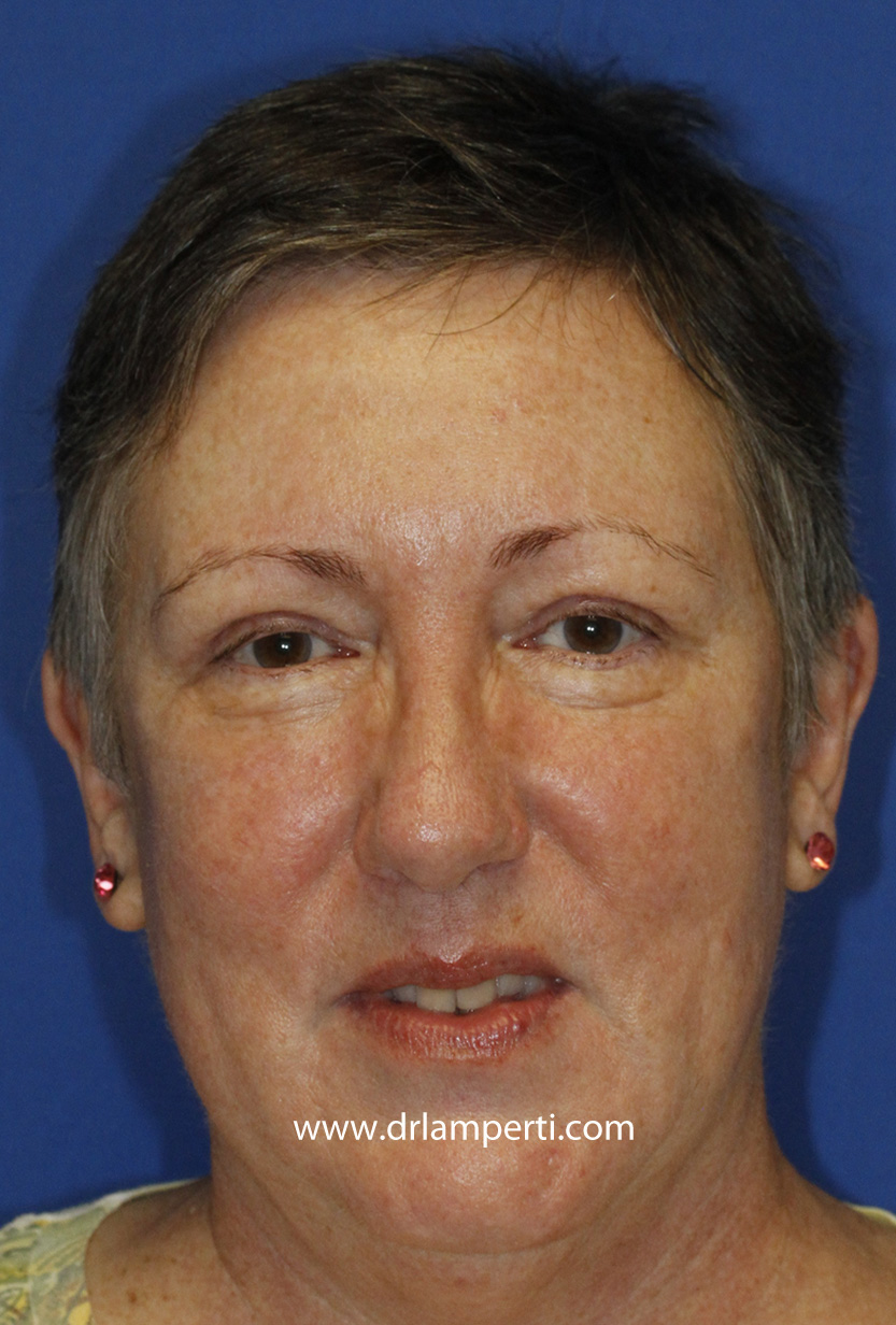 Blepharoplasty Frontal After