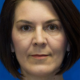After Blepharoplasty Photo Frontal