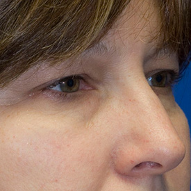 Before blepharoplasty photo