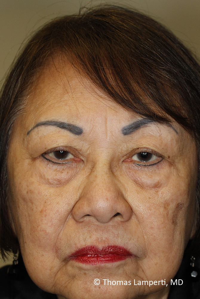 Before Blepharoplasty Frontal