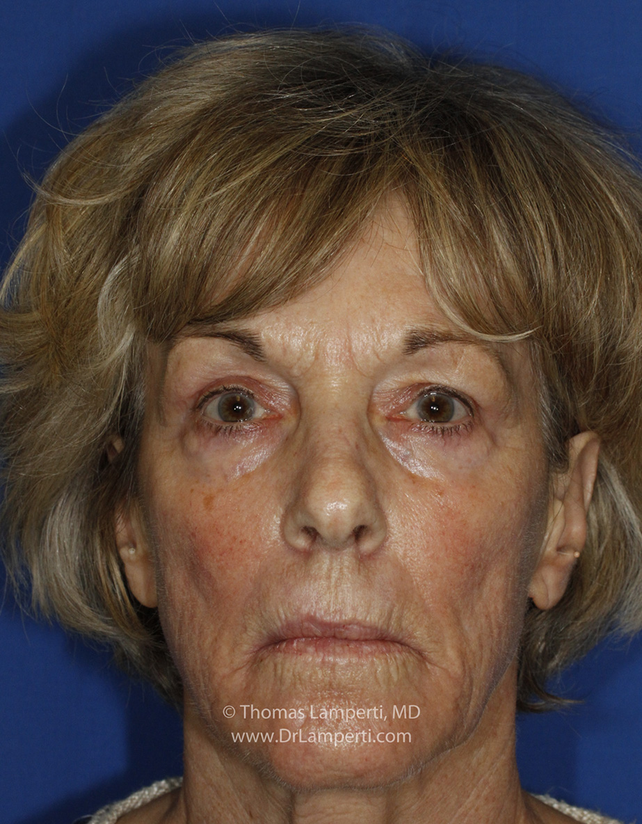After Blepharoplasty Frontal