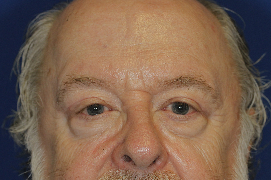After Left Blepharoplasty and Ptosis Repair