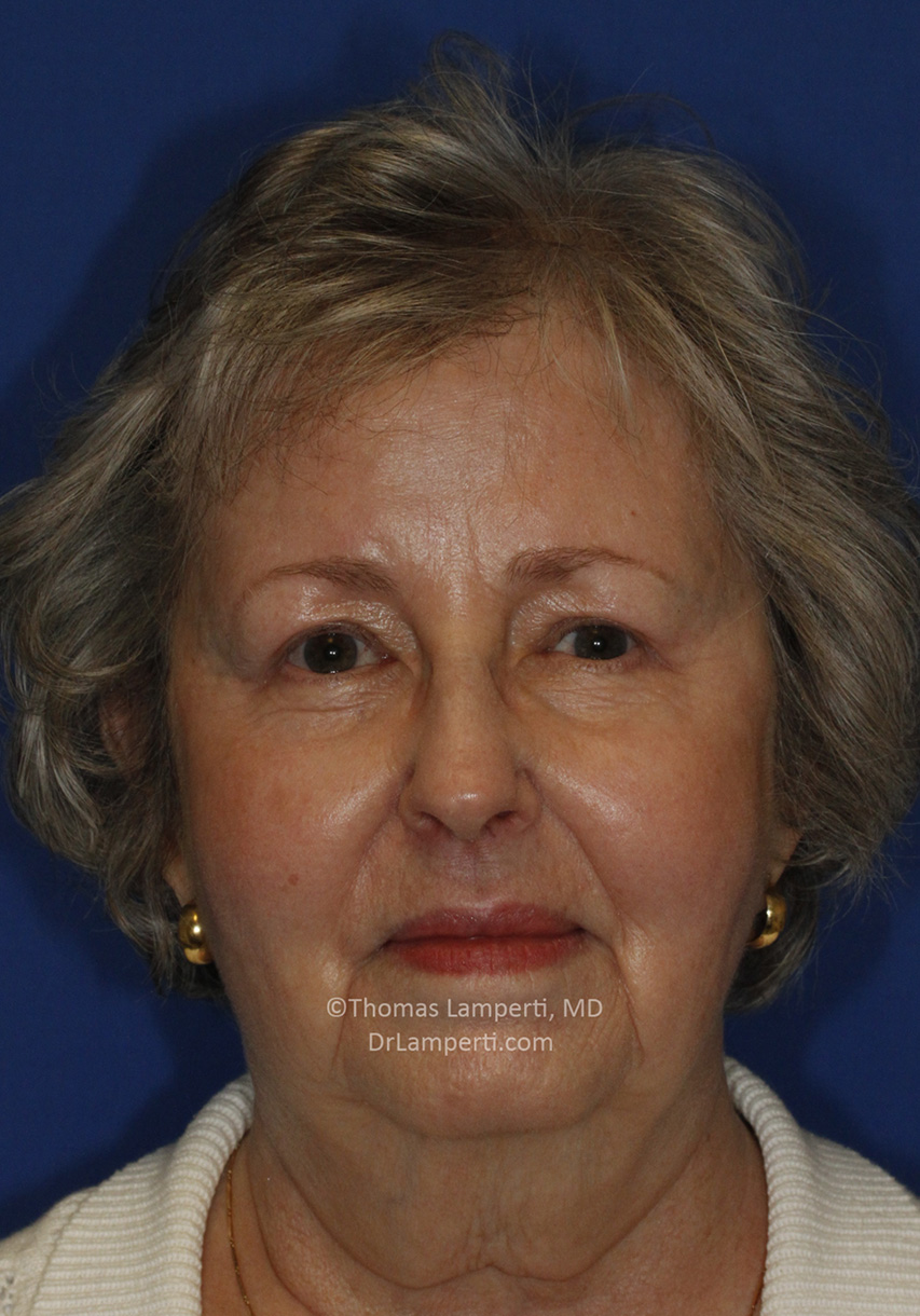 Blepharoplasty After Frontal