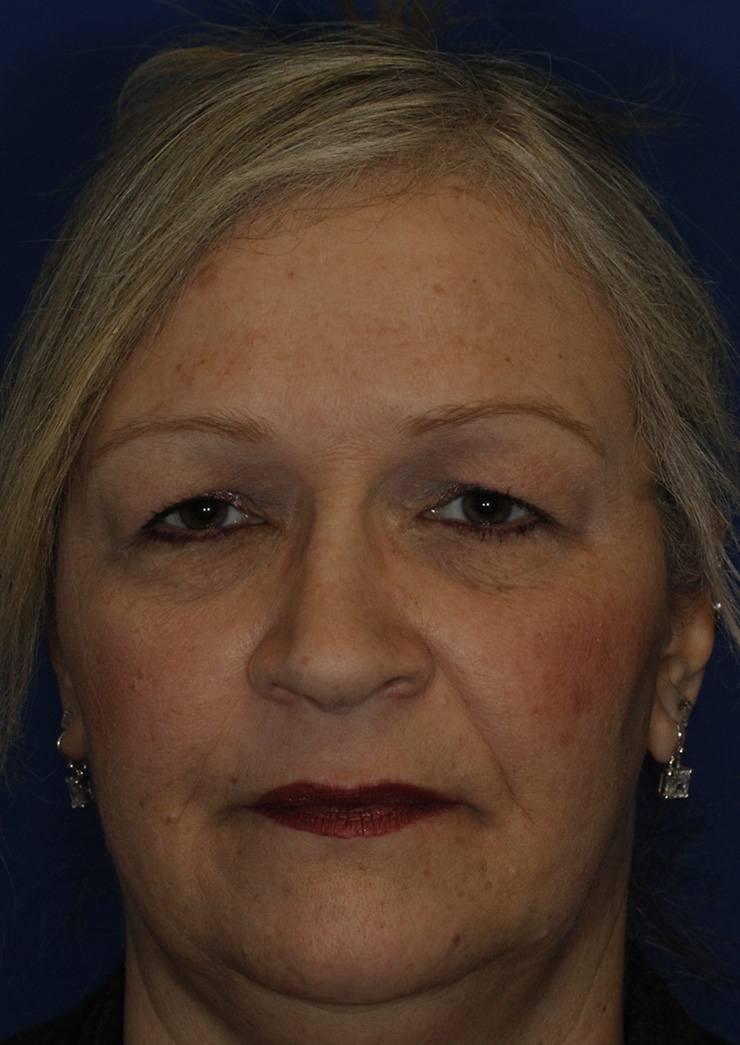 Blepharoplasty Frontal Before
