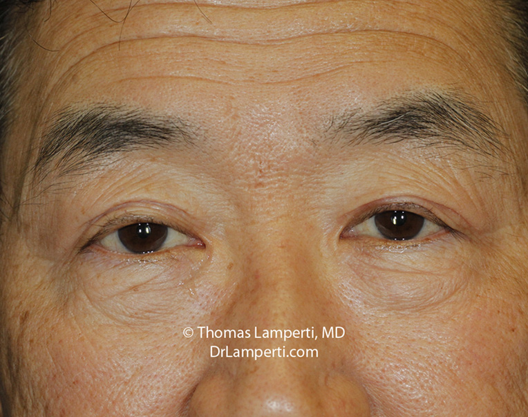 Blepharoplasty Ptosis Repair After