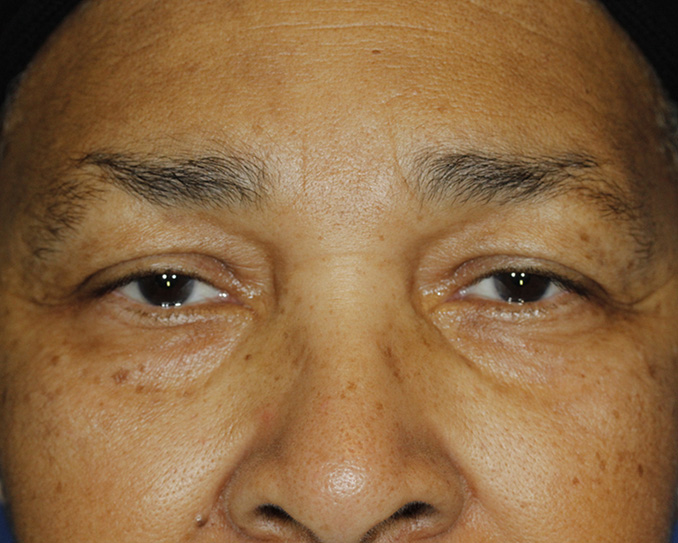 Blepharoplasty Before Frontal