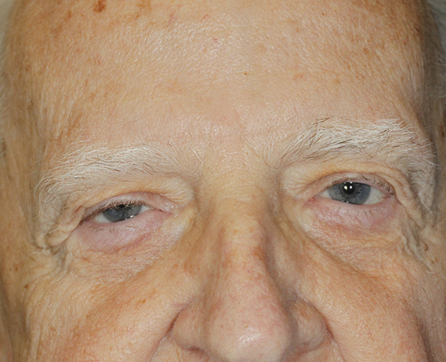 Blepharoplasty and Ptosis Repair Before