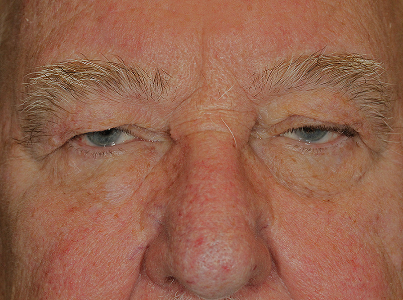 Blepharoplasty Ptosis Repair Before