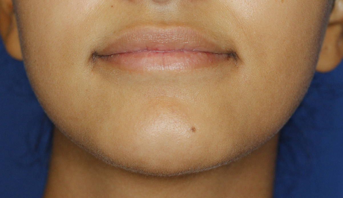 Cleft Chin After Frontal