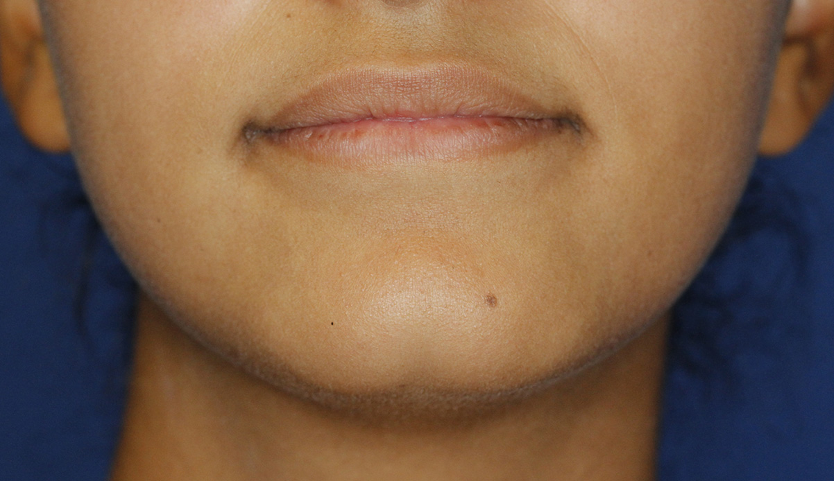 Cleft Chin Before Frontal