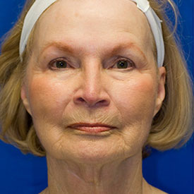 Revision Facelift Before Photo