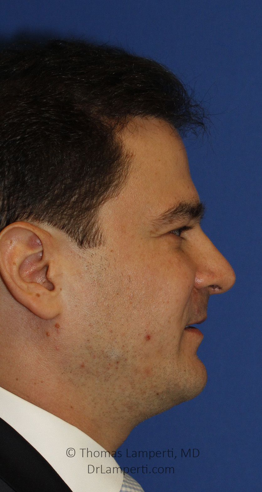 Necklift After R Profile