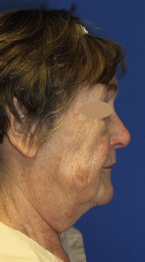 Facelift Before R Profile