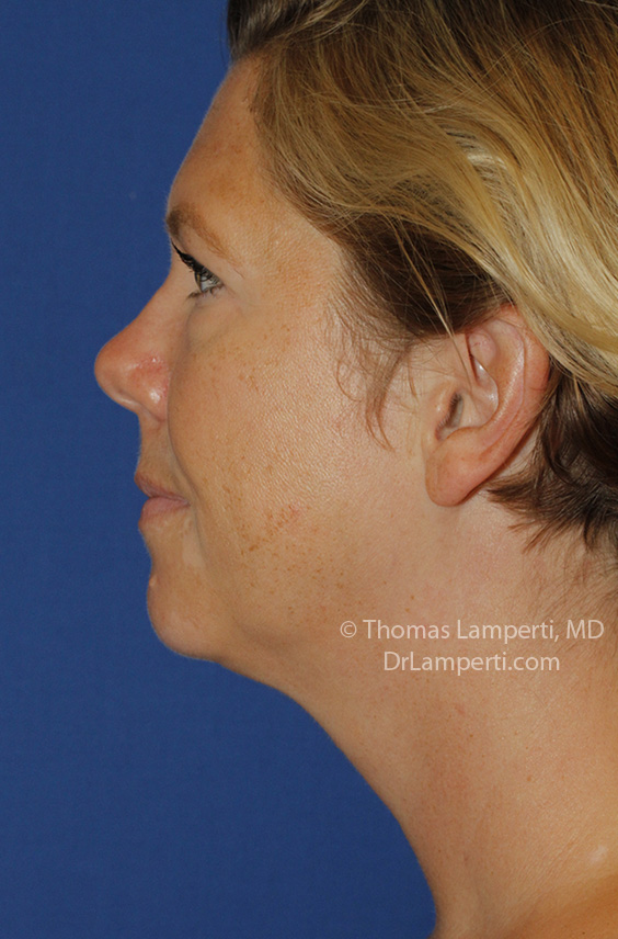 Neck Lift After L Profile