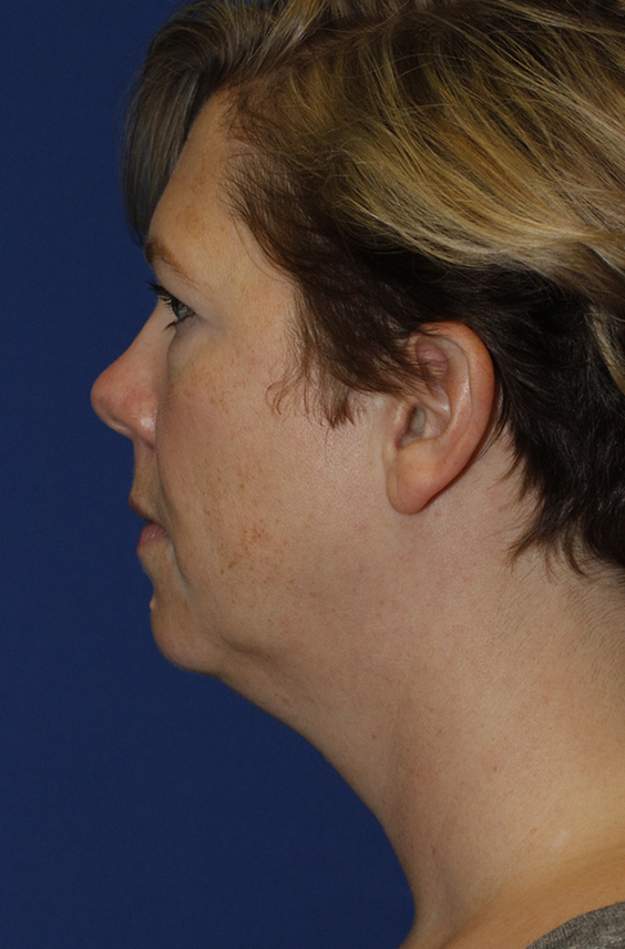 Neck Lift Before Profile