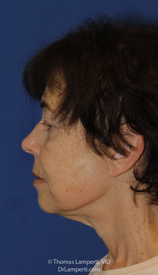 Facelift After L Profile