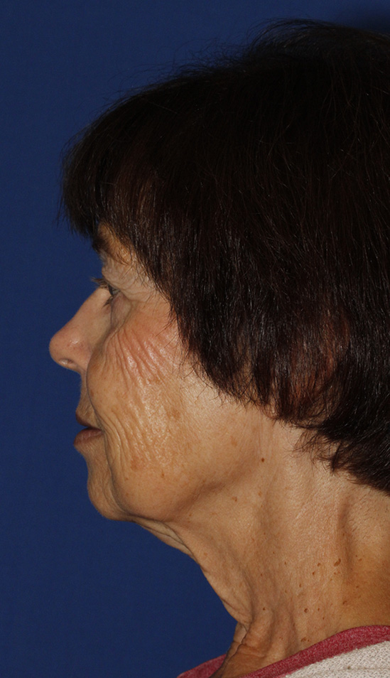 Facelift Before L Profile