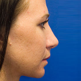 After Fat Grafting Profile