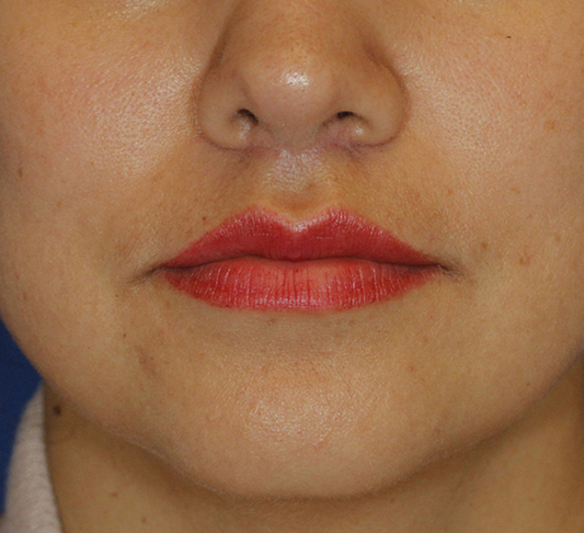 Subnasal Lip Lift After