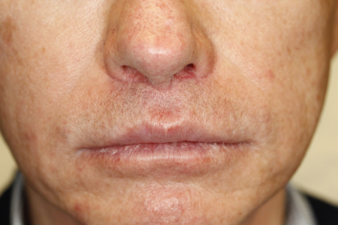 Lip Augmentation Seattle Facial Plastic Surgeon Dr