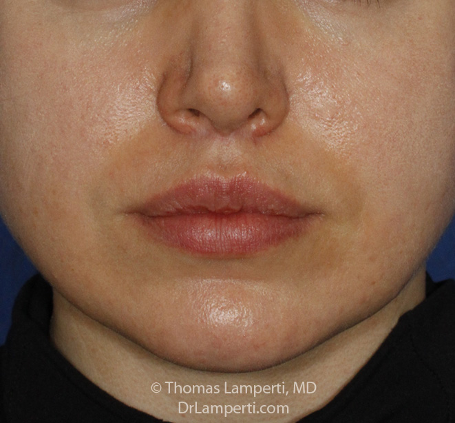 Upper Lip Lift After