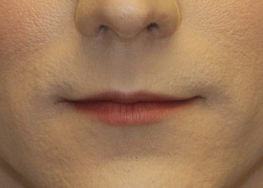Subnasal Lip Lift Before