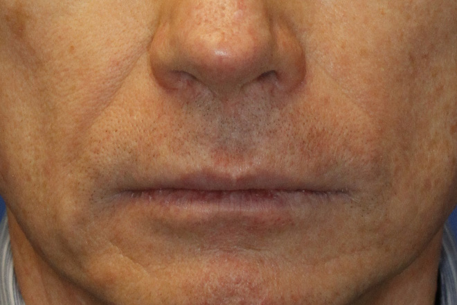 Before Lip Lift Frontal