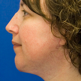 After neck liposuction photo
