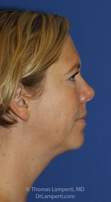Neck Liposuction R Profile After