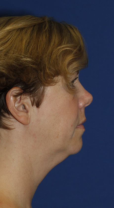 Neck Liposuction R Profile Before