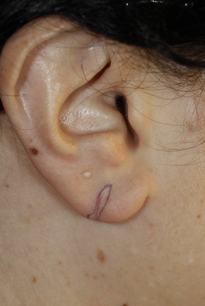 Earlobe Tear Repair Skin Marking