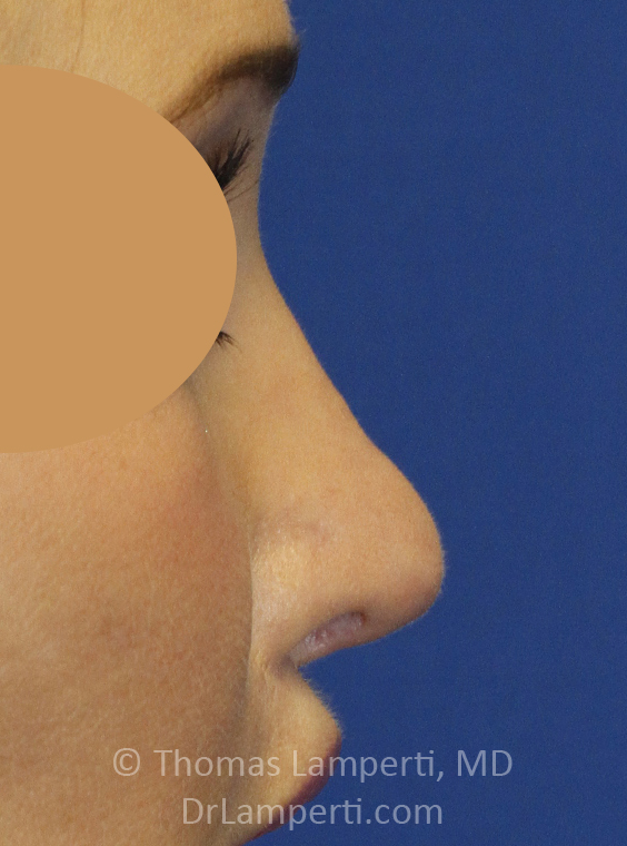 After Revision Rhionoplasty Right Profile