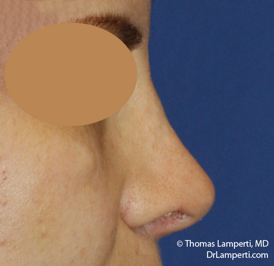 Rhinoplasty R Profile After