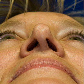Before asymmetric nostril repair