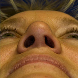 After asymmetric nostril repair