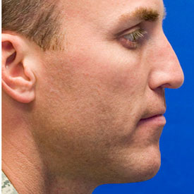 After droopy tip rhinoplasty