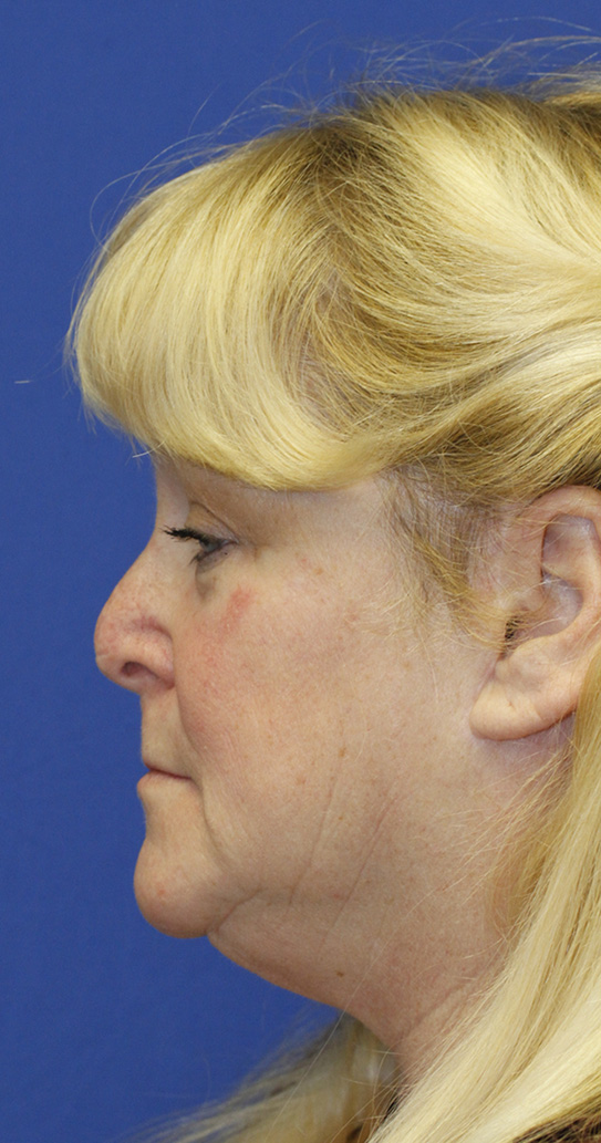 Before Revision Rhinoplasty Profile