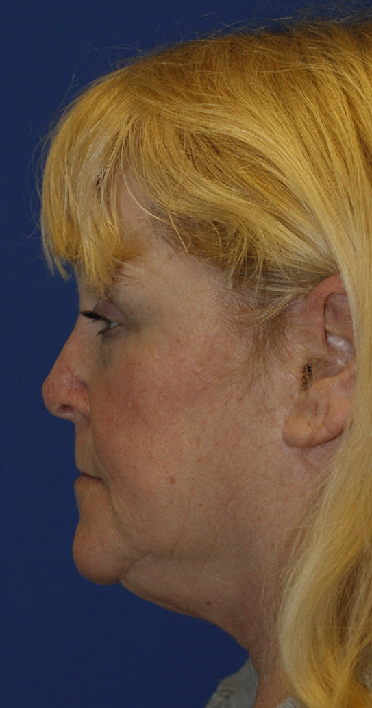 After Revision Rhinoplasty Profile