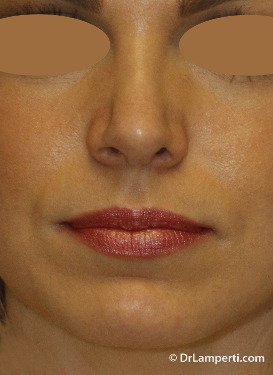 Revision rhinoplasty After Frontal