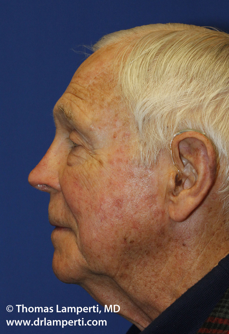 L Profile Revision Rhinoplasty After