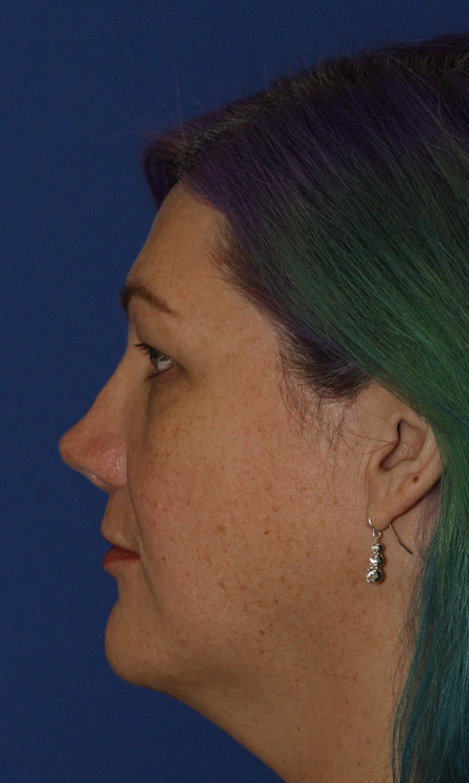 Rhinoplasty Before L Profile