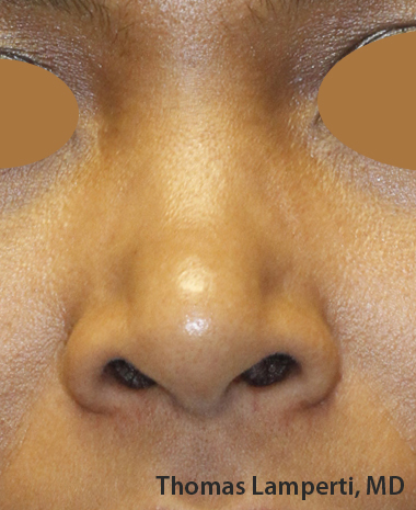 Before Dominican Rhinoplasty Frontal
