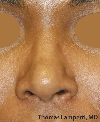 After Dominican Rhinoplasty Frontal