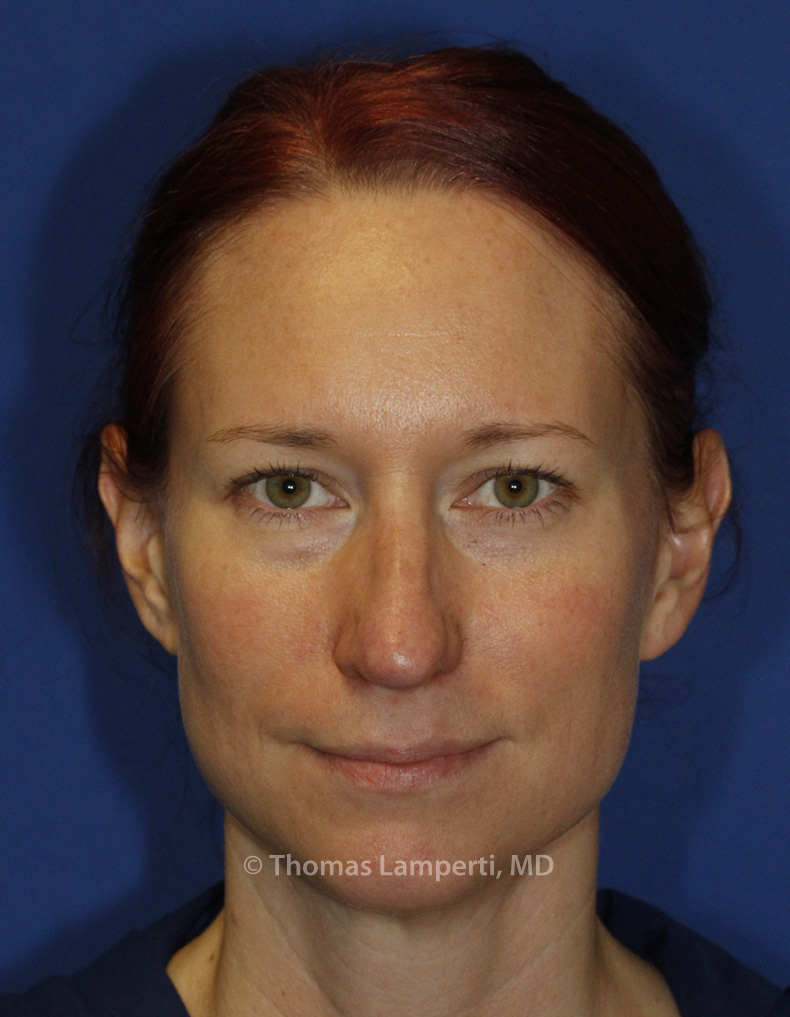 After Rhinoplasty Frontal