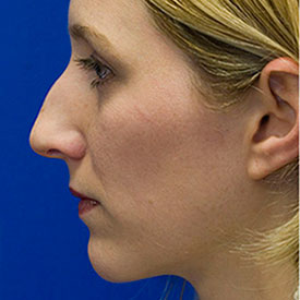 Before Bridge Hump Rhinoplasty