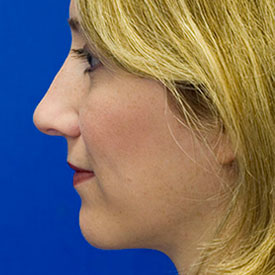 After Bridge Hump Rhinoplasty